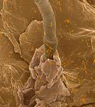 кишечная палочка и бифидобактерии на коже